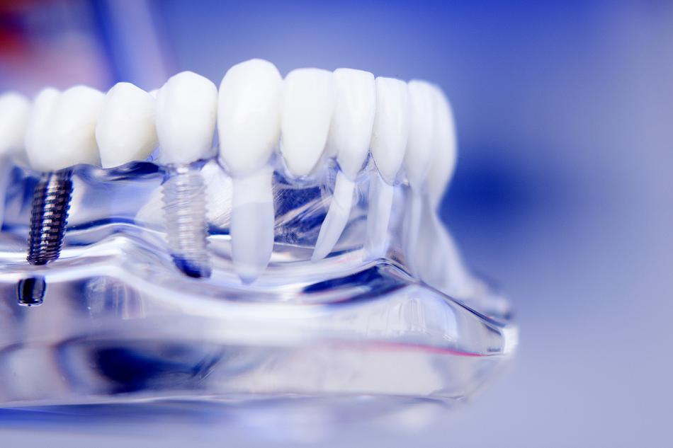 foto-para-web-implantologia-oral-quirurgica