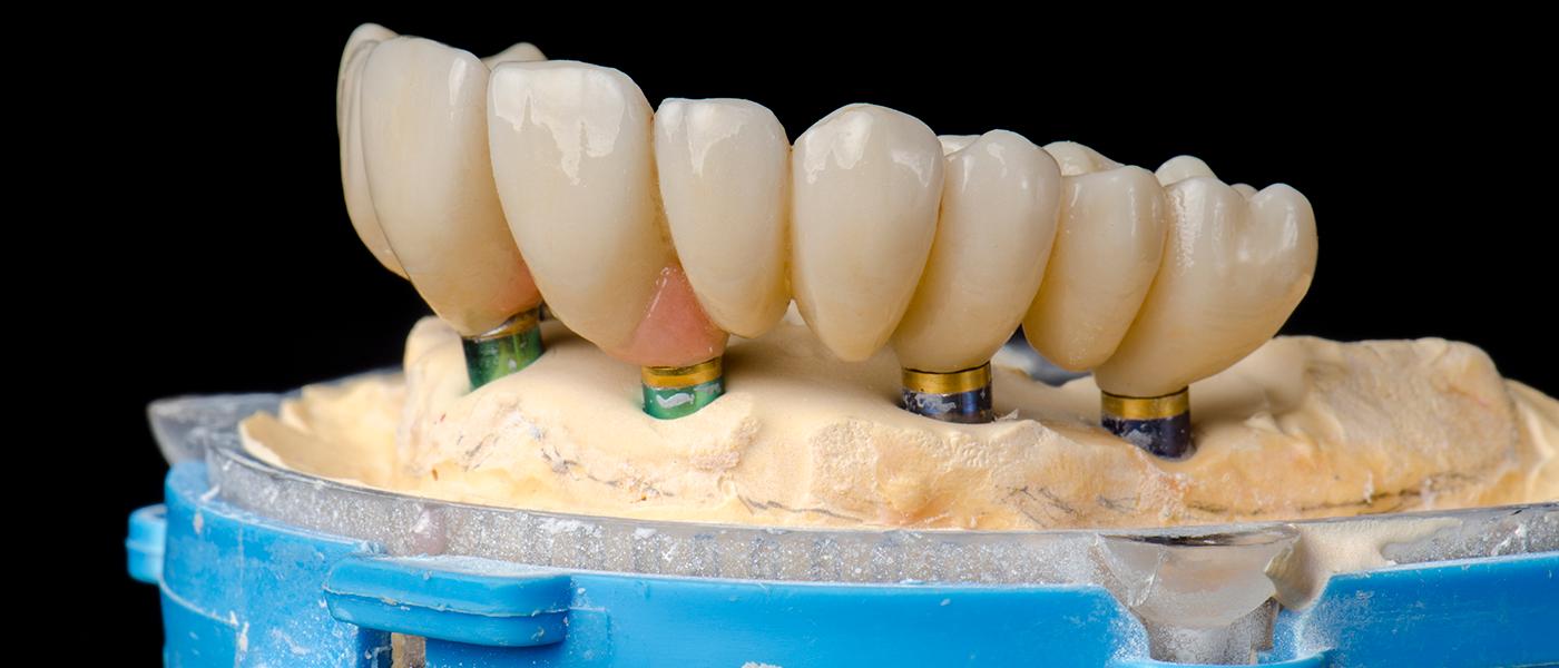 WEB-Diplomado-en-Rehabilitación-sobre-Implantes